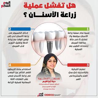 176247-عملية-زراعة-الاسنان-دكتورة-دينا-ا