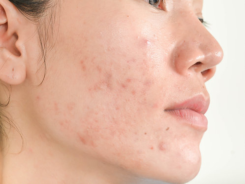 Acne Treatments with Insurance