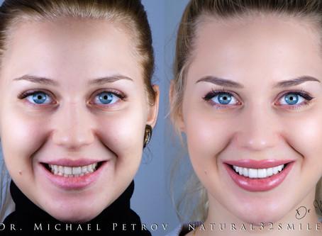 © Яркое преображение улыбки. Виниры  Люминиры без препарирования без обточки зубов.