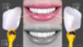 белее виниры москва люминиры стоматолог