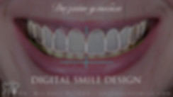 дизайн улыбки digital smile design.jpeg