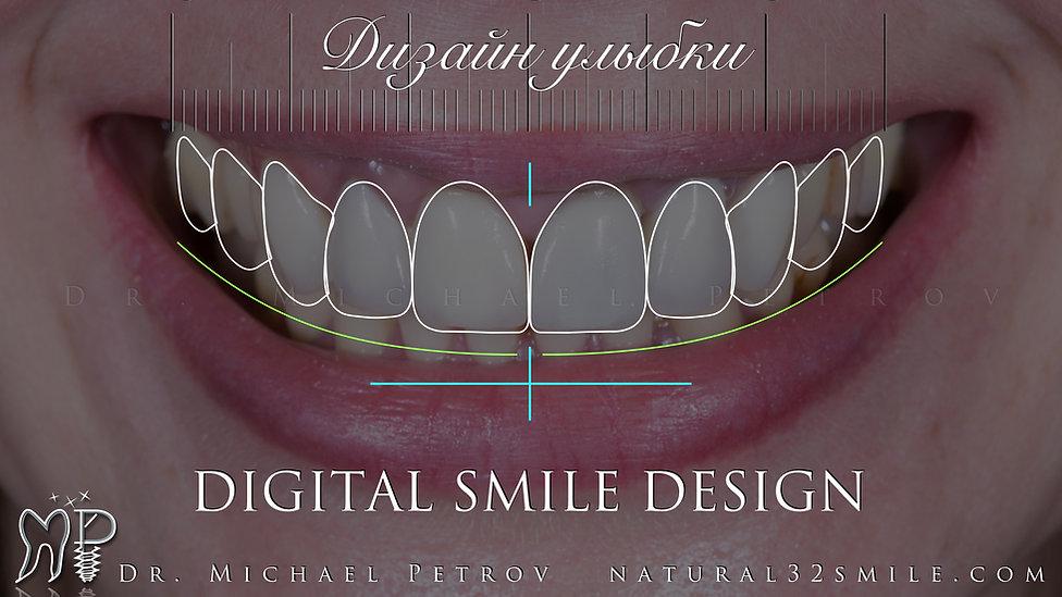 дизайн улыбки digital smile design.jpeg