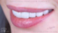 виниры, люминиры стоматолог Михаил Петро