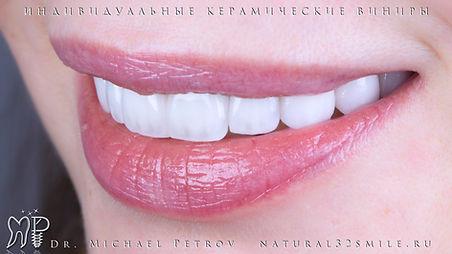 Реклама Елканова Амина.001.jpeg
