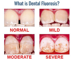 What is Dental Fluorosis
