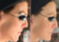 Before-After_Bio-Lift_Integrative_Aesthe