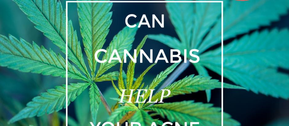 Can Cannabis Help Your Acne?