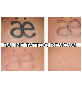 Pictures showing the phases of Saline Method Tattoo Removal. This should only be done by a Certified Profession.