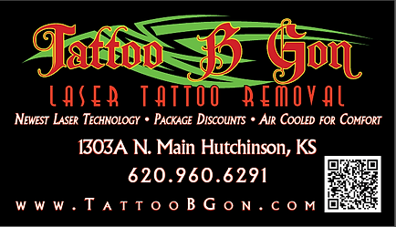 Tattoo Laser Removal Hutchinson