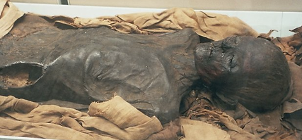 Mummy with exposed, dried skin