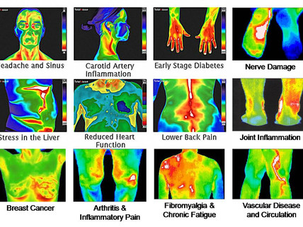 Thermography In New York City