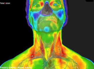 Oral Health, Thermography and Inflammation