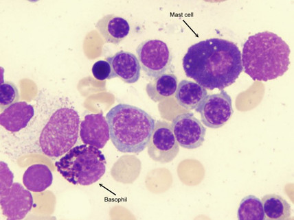 My Own Struggle with Mast Cells Gone Wild