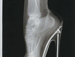 High Heels to Blame for Foot Condition