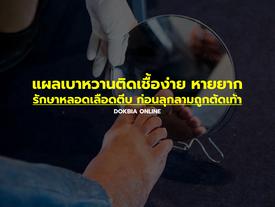 แผลเบาหวานติดเชื้อง่าย หายยาก รักษาหลอดเลือดตีบ ก่อนลุกลามถูกตัดเท้า