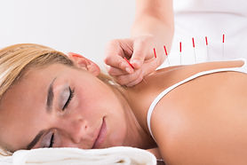Acupuncture HealthCasa at Work Toronto