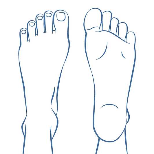 Foot Pain HealthCasa | Cutom Orthotics & Food Care Toronto