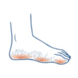 Athlete's Foot HealthCasa | Cutom Orthotics & Food Care Toronto