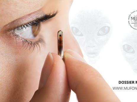 Dossier MUFON :  comparaison des procédures médicales Extraterrestres avec la médecine actuelle.