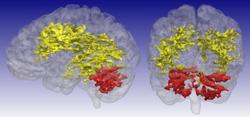 MRI scan - bipolar disorder