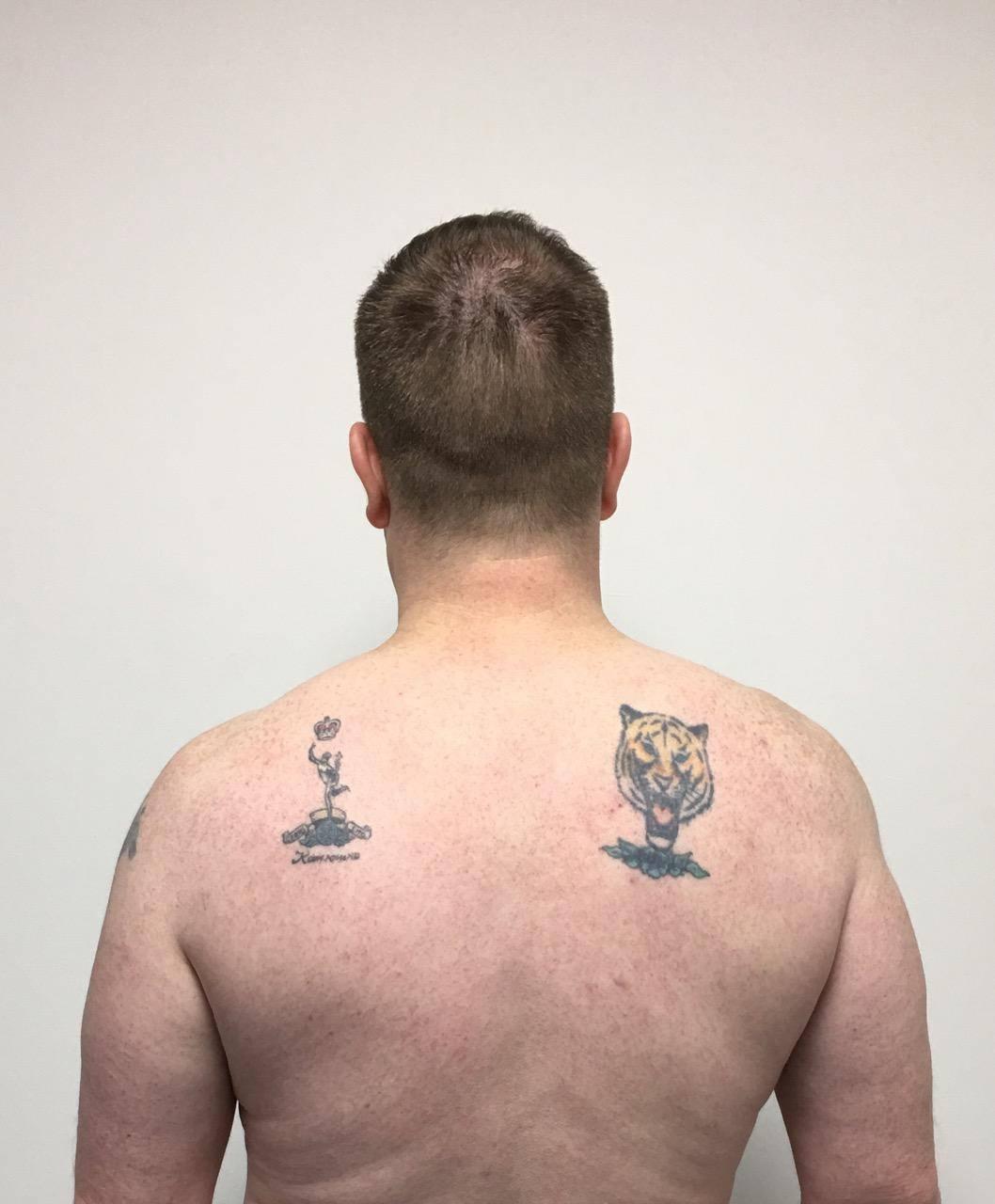 Scott's back (Before)