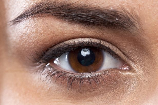 An easy guide to dealing with dark circles