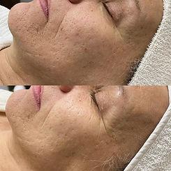 microneedling acnée
