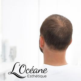 traitement perte de cheveux