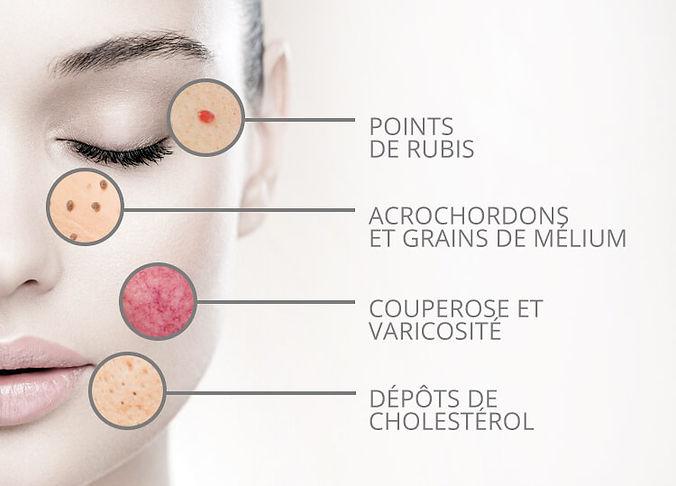 thermocoagulation,tétine,acrhocordon,point de rubis