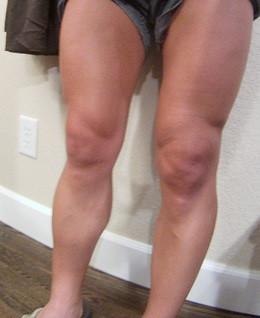 Bummed Left Knee :(