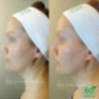 ennen-jälkeen-kuva6 (1).jpg