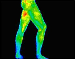 legs views lateral right using Digital Infrared Thermal Imaging (DITI)
