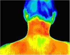 Posterior cervical scan using Digital Infrared Thermal Imaging (DITI)