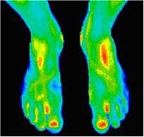 feet and toe scans using Digital Infrared Thermal Imaging (DITI)