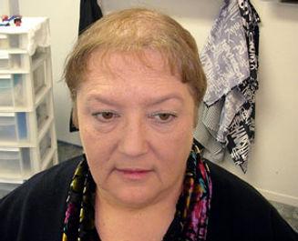 womens-hair-loss