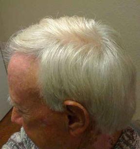medical-radiation-hair-treatment