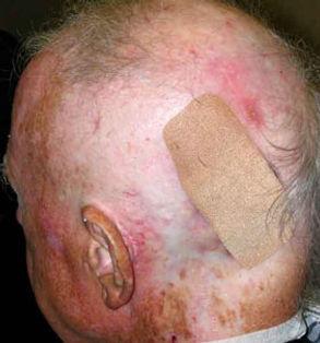 medical-radiation-hair-loss