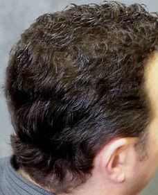 mens-hair-loss-treatment-concord-ca