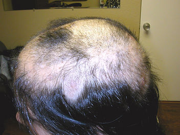 womens-hair-loss-concord-ca