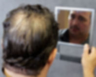 mens-hair-loss-concord-ca