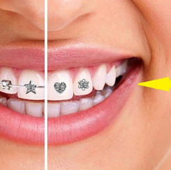 Best-Orthodontist-in-Lake-County-IL - Co