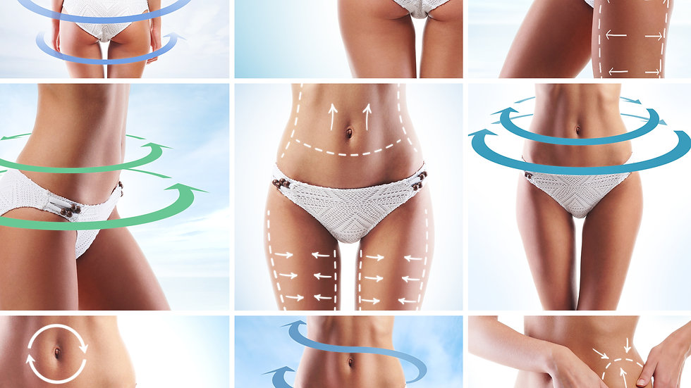 1 Month Unlimited Body Contouring Treatments Full Body