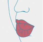 Mouth breathing or constantly open lips is a cause and/or dignal of tongue thrust and low tongue posture