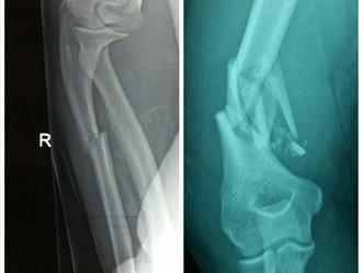 My Story 1a - My Broken Bones