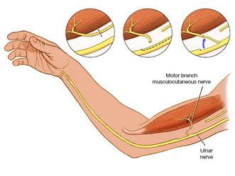 Surgical management brachial plexus injuries
