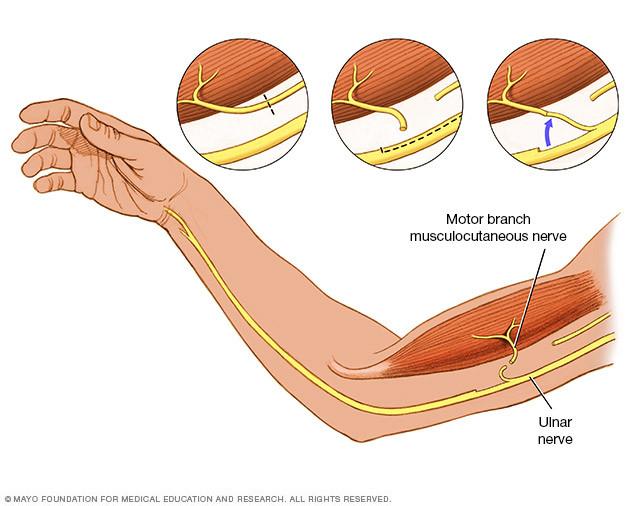 Brachial Girl - nerve transfer info