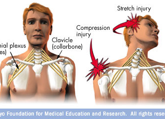 Brachial Plexus Injury - Mayo Clinic