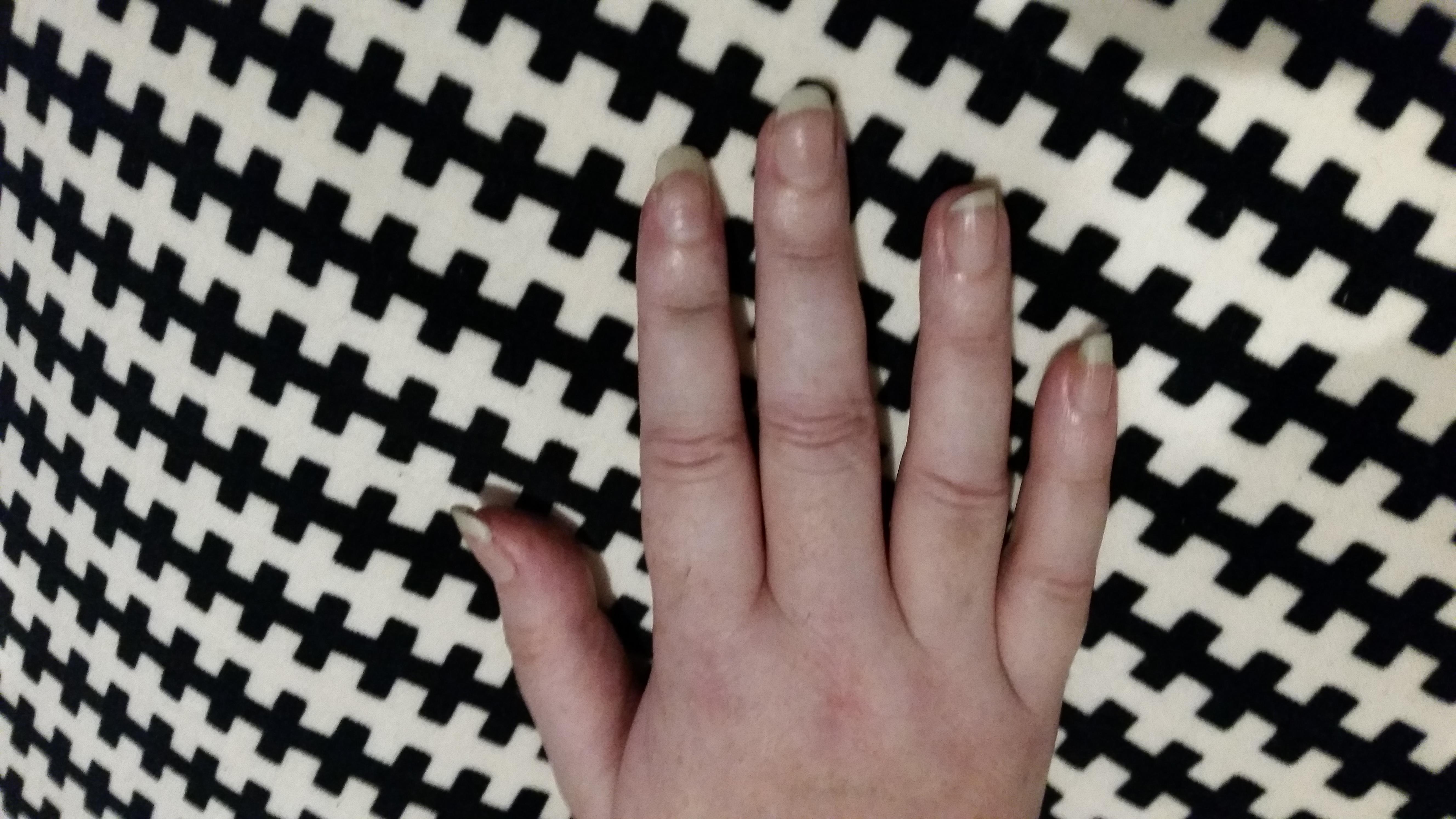 Weird hand