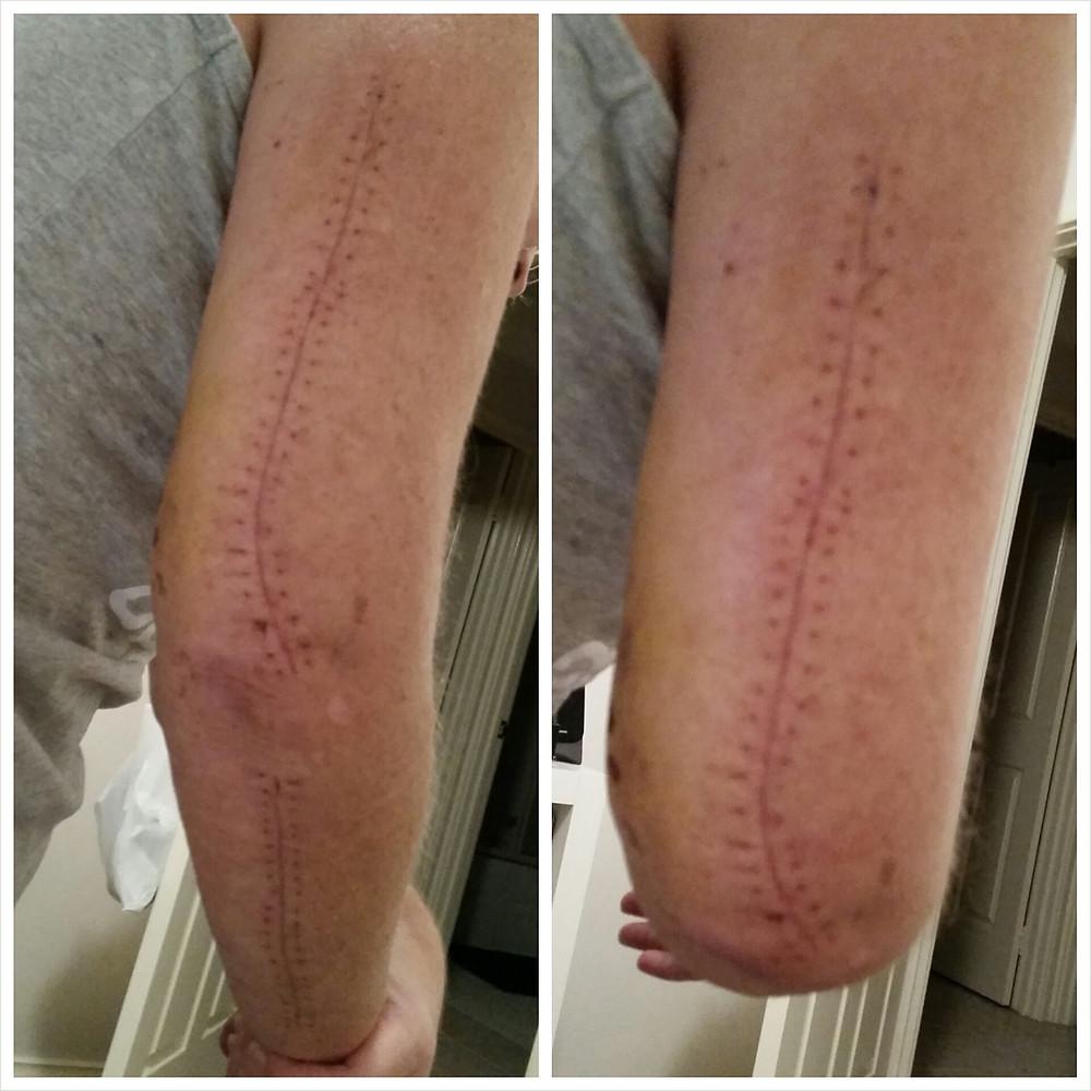 Brachial Girl - staples removed