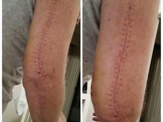 My Story 2a - My Scars